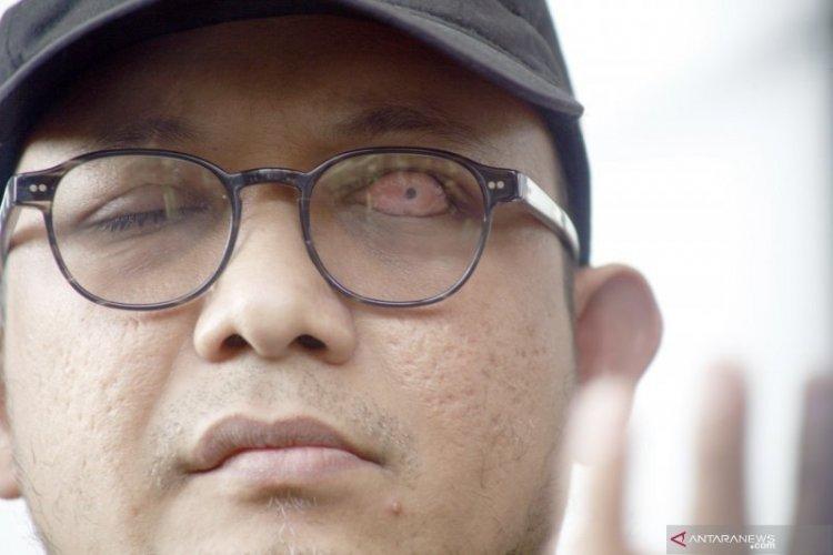 Polri juga Mediasi Selesaikan Cuitan Twitter Novel Baswedan Soal Wafatnya Maaher At-Thuwailibi