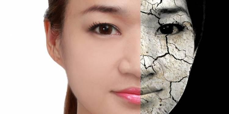 6 Gejala kerusakan di wajah yang menandakan ritual kecantikanmu perlu diubah