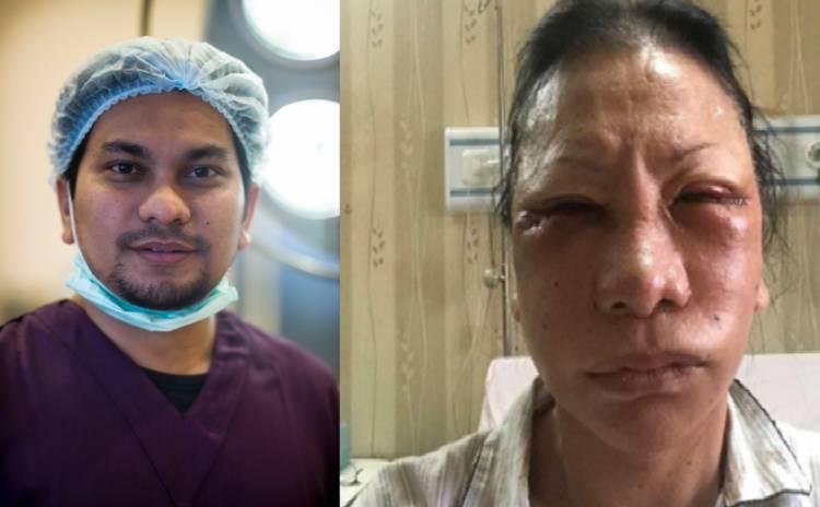 Tompi Sebut Bengkak Wajah Ratna Sarumpaet Bekas Operasi Plastik