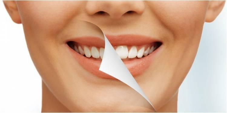 Cara Memutihkan Gigi dengan Kunyit