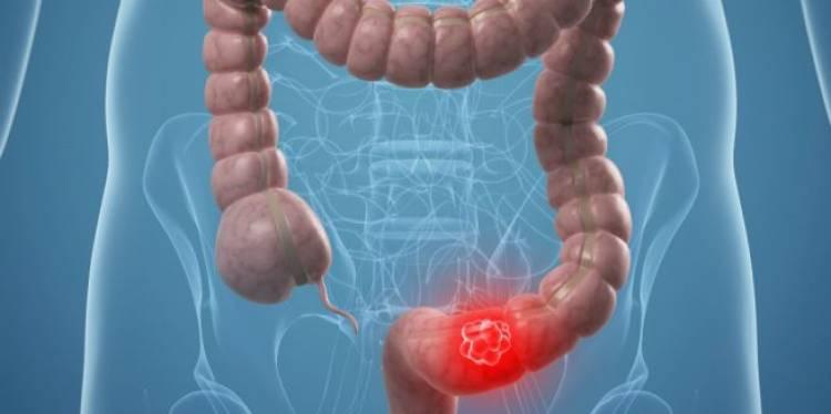 Begini Gejala Kanker Usus dan Faktor Risikonya