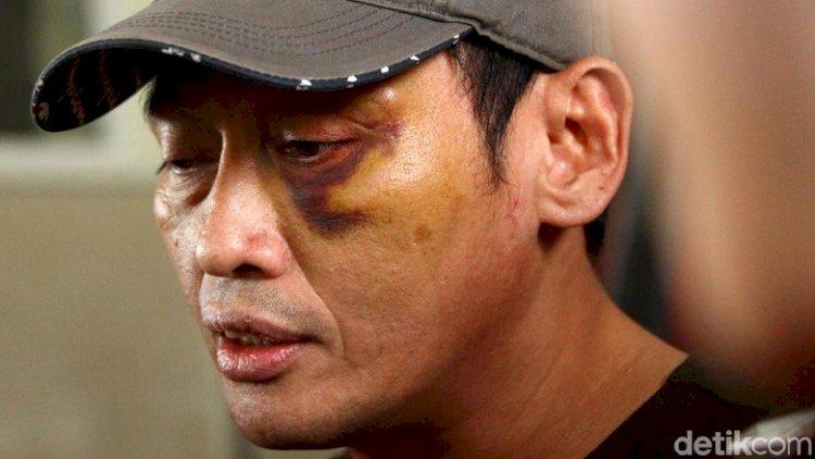 Polisi Sebut Munarman FPI Dalam Kasus Penganiayaan Ninoy Karundeng